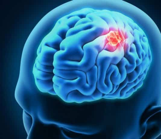 Biomarkers Could Help Predict Recurrence of Malignant Brain Tumor