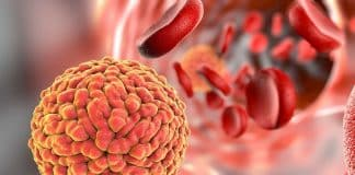 Microbiome Could Help Predict Cancer-Related Blood Infections