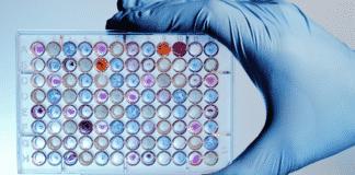 Govt Job Opening for MSc Microbiology Candidates @ ICAR-CRIJAF