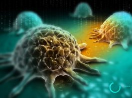 """""""Resolvin"""" Cancer by Clearing Accumulated Debris of Tumour Cells"""