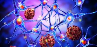 Study Finds Cytokine IL-23 to Play Crucial Role in Autoimmune Diseases