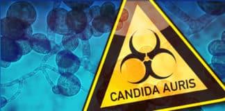Candida auris Outbreak - A Serious Global Health Threat