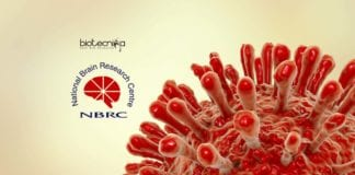 HIV Neuropathogenesis Project Job