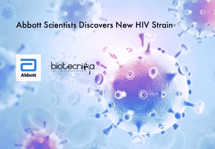 Abbott Discovers New HIV Strain