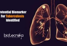 potential biomarker for tuberculosis
