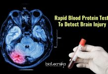 blood test for brain injury
