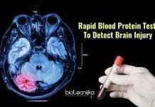 blood test for brain injury