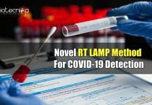 RT LAMP Based COVID Test