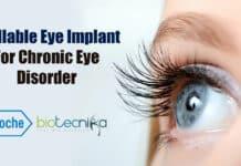 Roche's eye implant